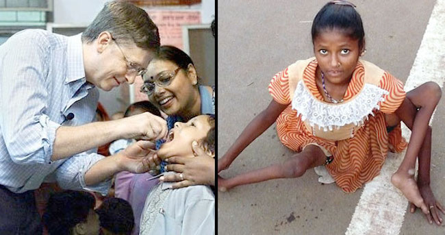 bill-gates-polio-vaccine